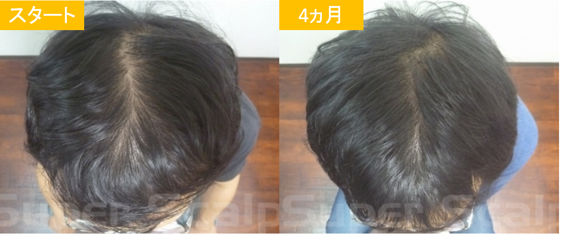 30代男性発毛症例15