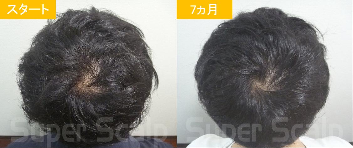 10代男性の発毛症例2