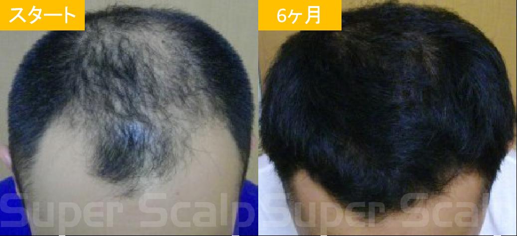30代男性発毛症例6
