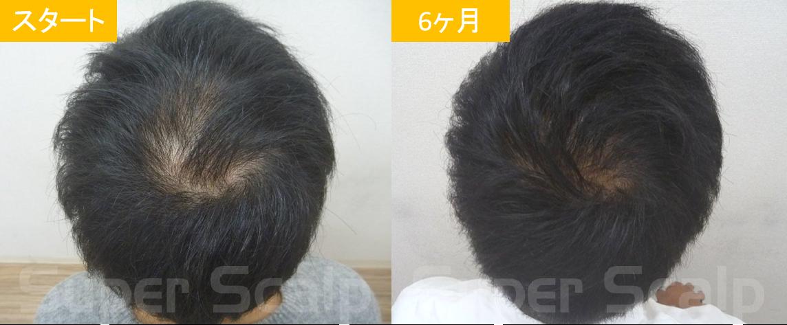 30代男性発毛症例7