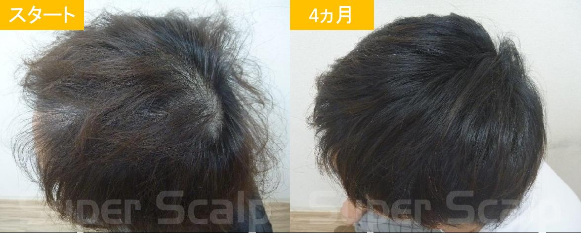 30代男性発毛症例8