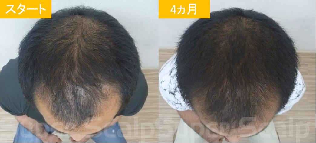 30代男性発毛症例9