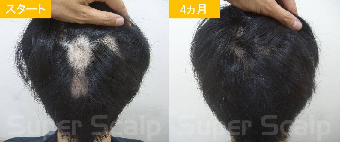 30代男性発毛症例10