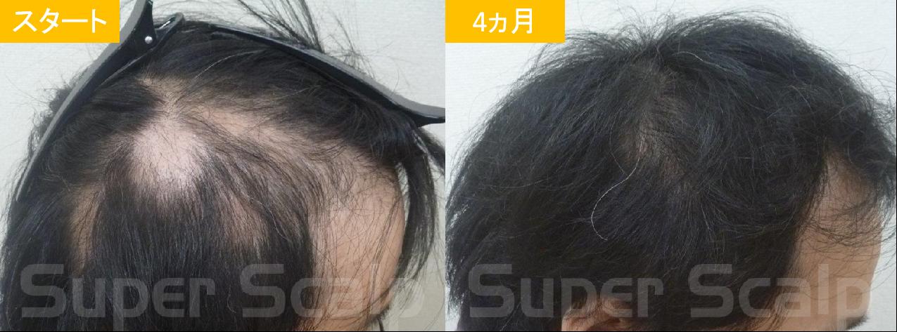 30代男性発毛症例11