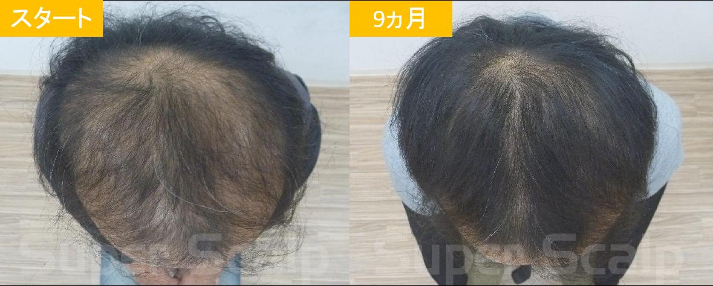 30代男性発毛症例14