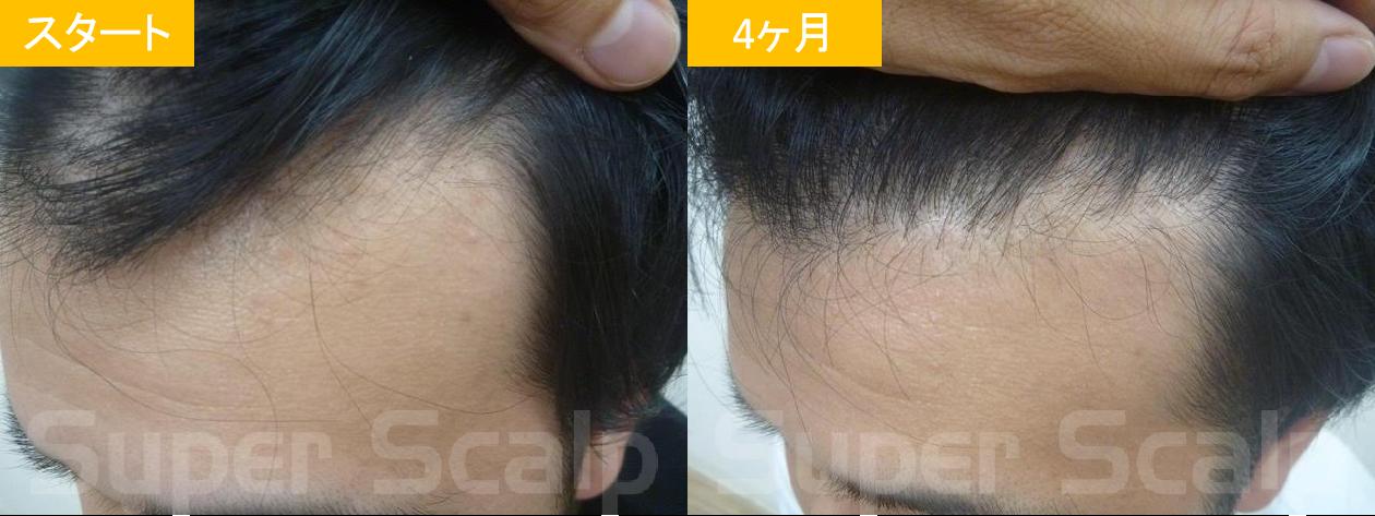 20代男性発毛症例2