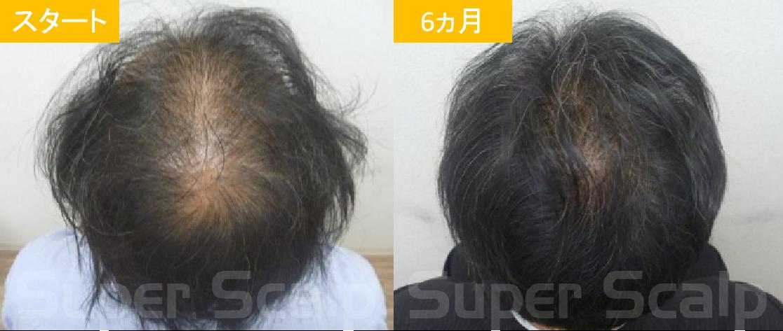 40代男性発毛症例1
