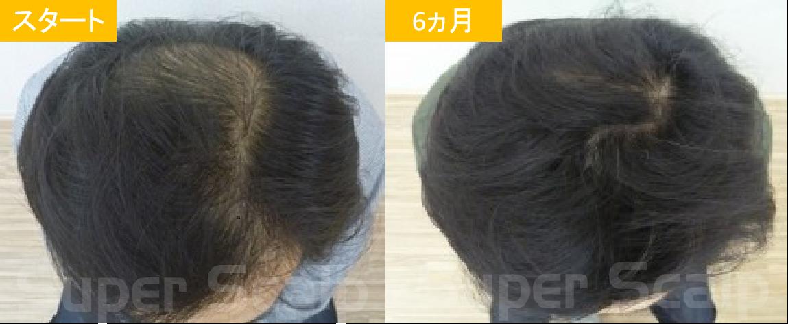 40代男性発毛症例2