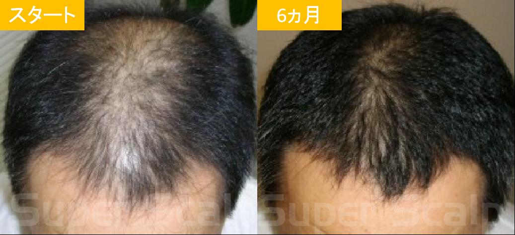 40代男性発毛症例4