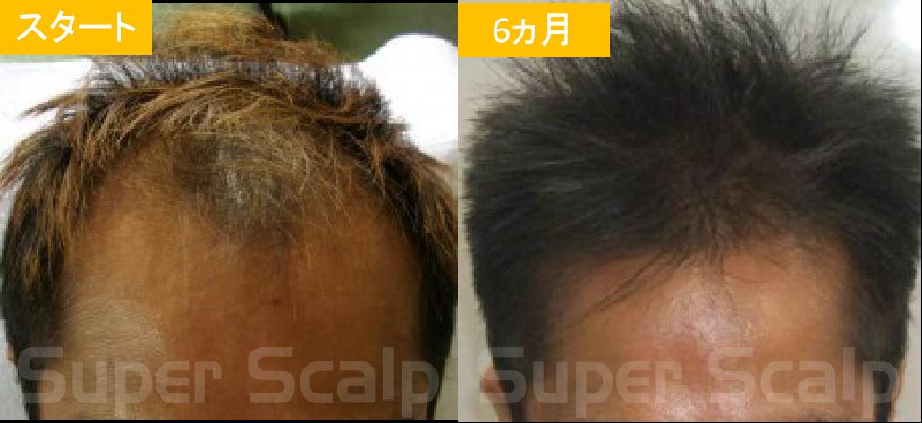 40代男性発毛症例5