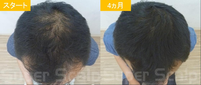 40代男性発毛症例8