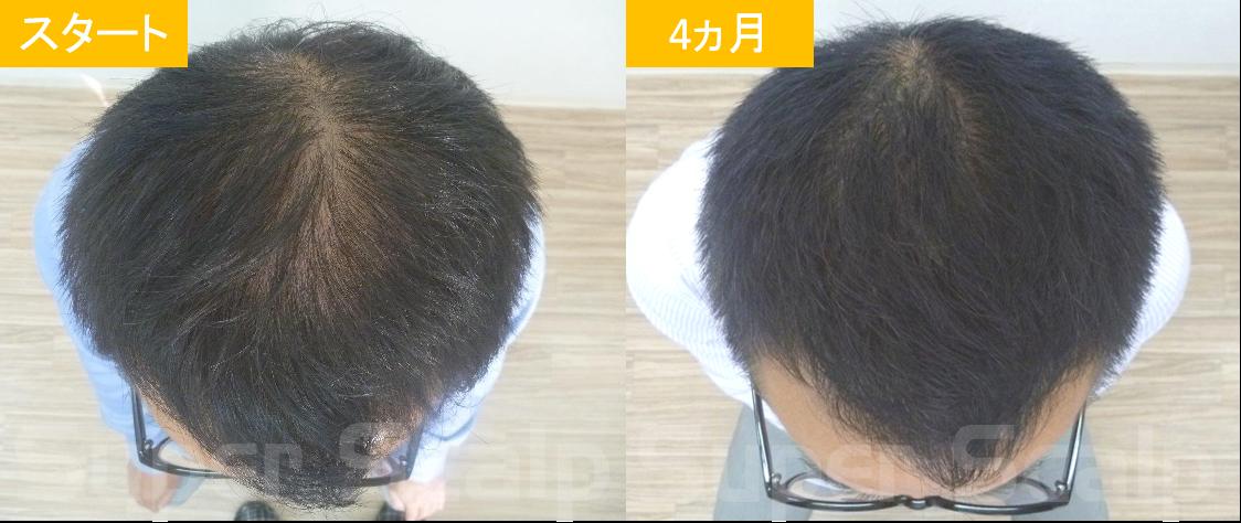 40代男性発毛症例10