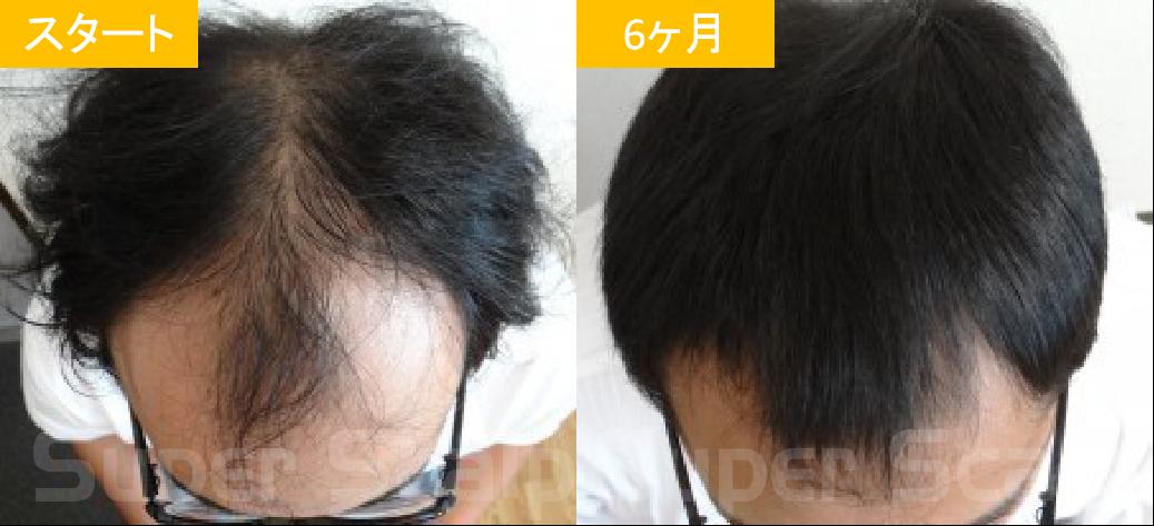 20代男性発毛症例3
