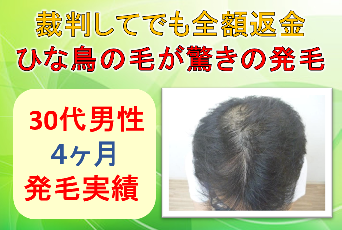 30代男性の発毛