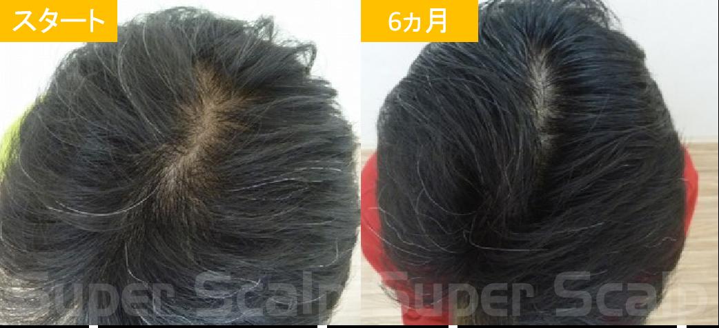 50代男性発毛症例1