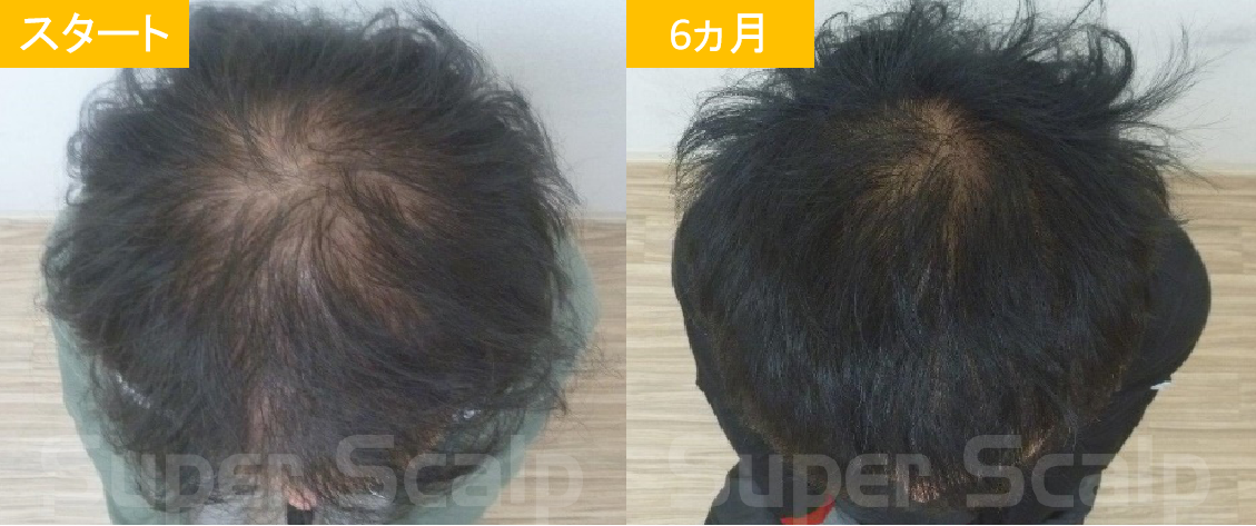 50代男性発毛症例2