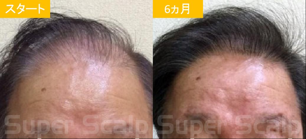 60代男性発毛症例1