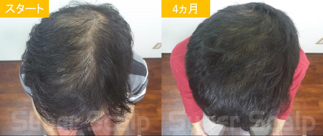 30代男性発毛症例12