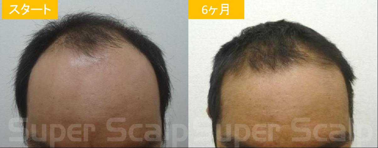 30代男性発毛症例2