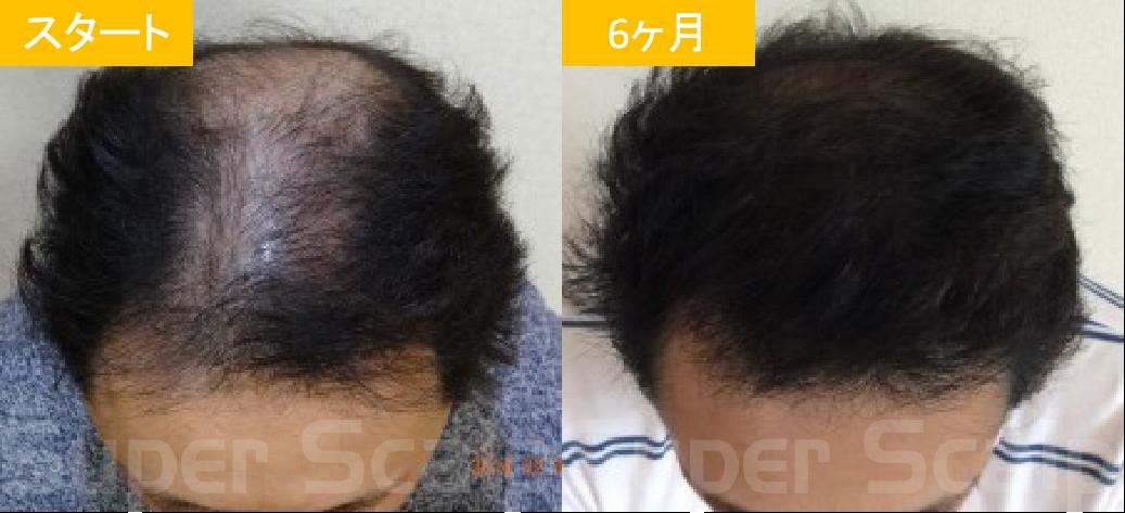 30代男性発毛症例3