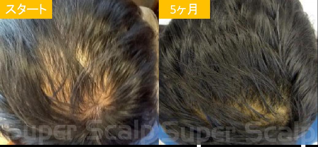 30代男性発毛症例4